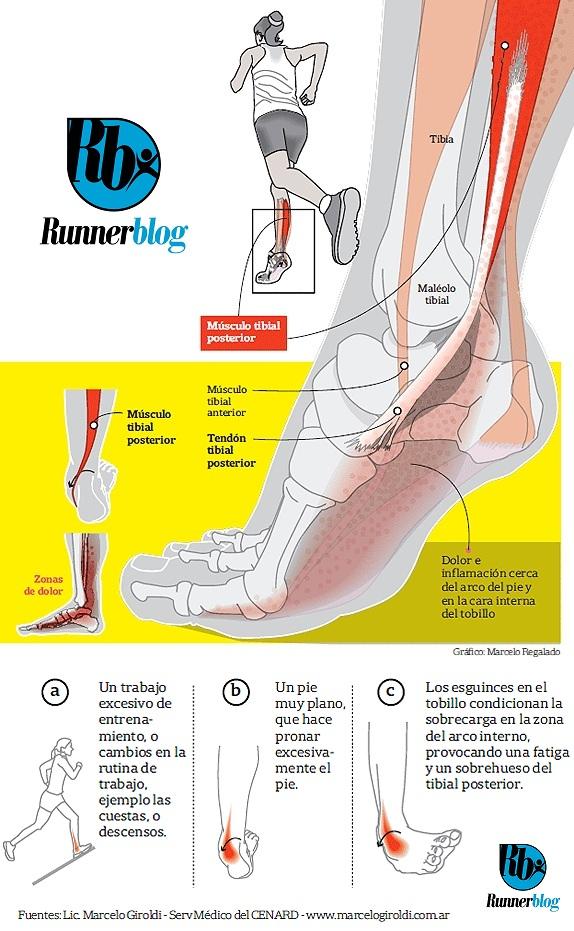 Lesiones Tendinitis Tibial Posterior Blogs Lanacioncom